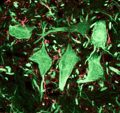 Фото: Нейроны (зелёные) и глиальные клетки (красные), защищающие нейроны и обеспечивающие их кислородом и питательными веществами (C.J.Guerin, PhD, MRC Toxicology Unit).